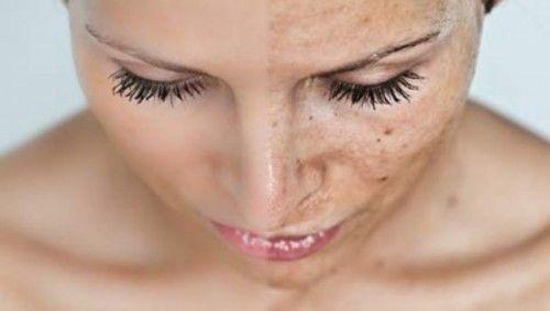 pomanjkanje kolagena postara kožo